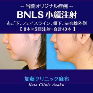 BNLS・注射溶解注射口コミレポ/あご編