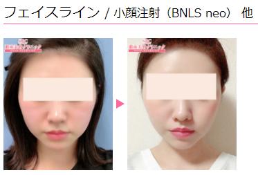 BNLSneoをフェイスラインに|おすすめ本数