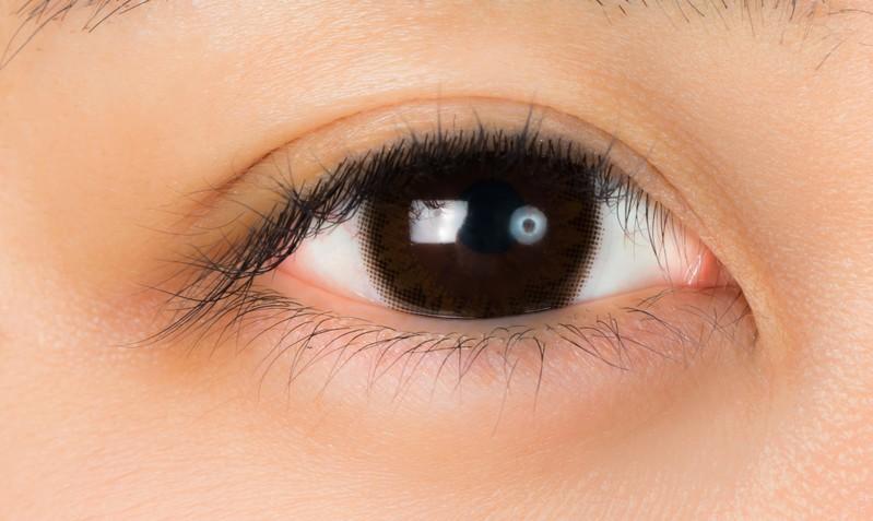 脂肪溶解注射で目元・目袋のたるみを解消